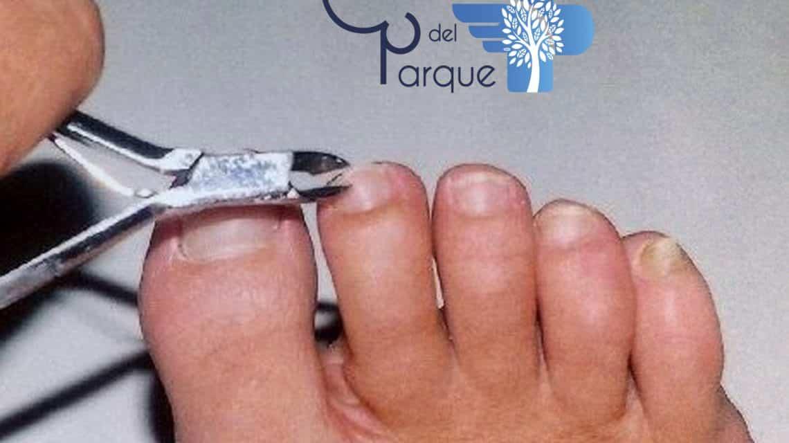¿Como cortarse las uñas?